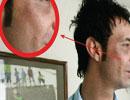 جراحی زیبایی در بازيکنان مشهور فوتبال ايران !!