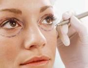 از جراحی زیبایی لاله گوش تا کشیدن پلک!