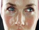 چگونه از چرب شدن پوست جلوگیری کنیم؟