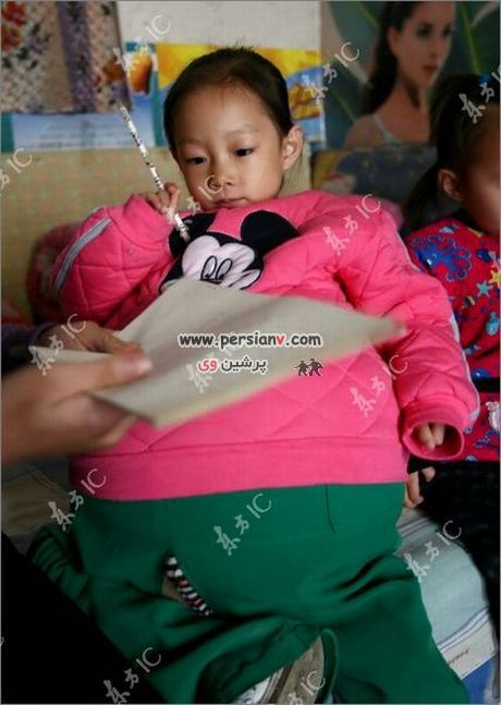 دختری که شکمش 1 متر باد کرده ..