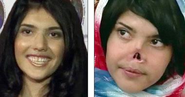 عکس دیدنی : ترمیم بینی بریده شده دختر افغان