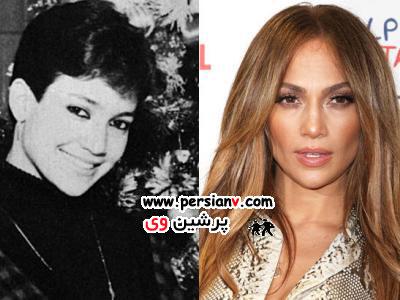 خوانندگان مشهور دنیا ، قبل و بعد از شهرت ( عکس)