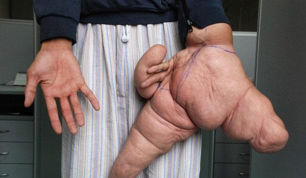 عکس : مردی با دست 10 کیلوگرمی زیر تیغ جراحان!!