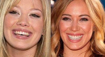 ستارگان مشهوری که دندان مصنوعی دارند