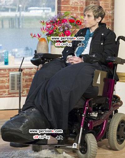 زنی با بزرگترین پاهای دنیا و همچنان رو به رشد