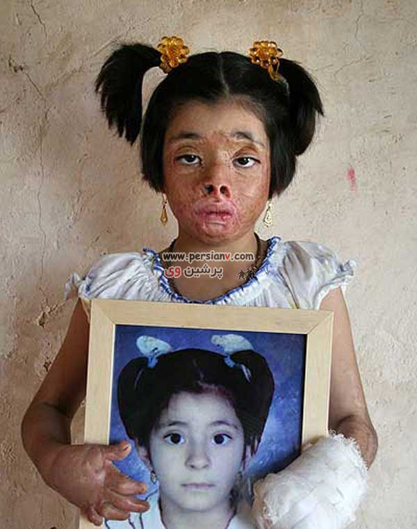 عکس هایی از کودکان سوخته در آتش  18