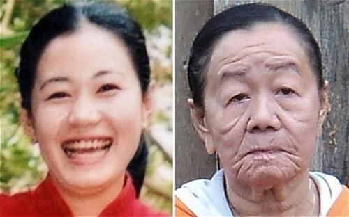زنی 28 ساله که چهره ای شبیه پیرزن دارد