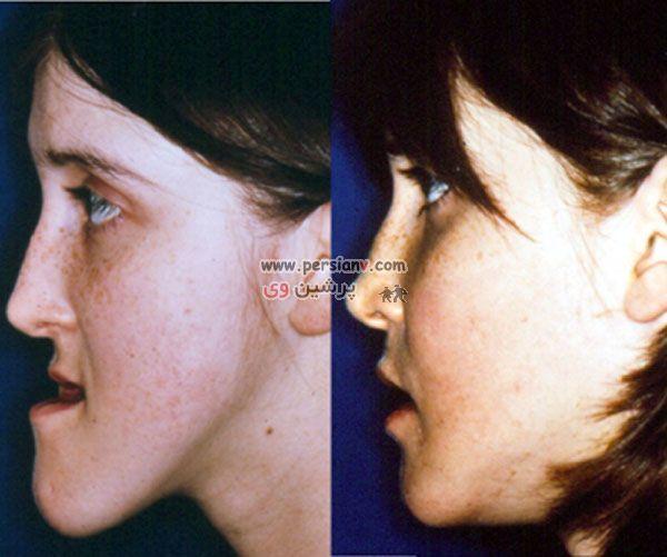 عکس : فک عجیب یک دختر قبل و بعد از جراحی