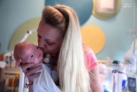 نوزاد بدون بینی