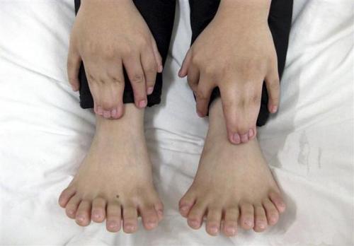 عکس هایی ازپسر 31 انگشتی قبل و بعد از عمل جراحی