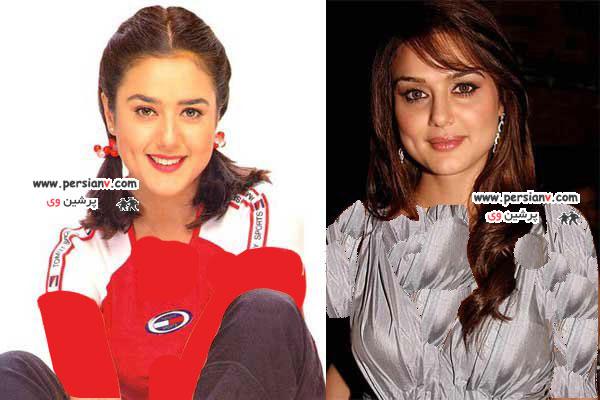قبل و بعد از عمل زیبایی بازیگران بالیوود عکس