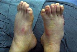 پسر 31 انگشتی بعد از عمل جراحی / عکس