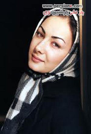 جراحی زیبایی در بین ستاره های ایرانی