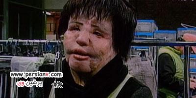زنی که روغن خوراک پزی به صورتش تزریق کرد