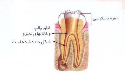 راهکارهایی ساده برای تسکین دندان درد شبانه