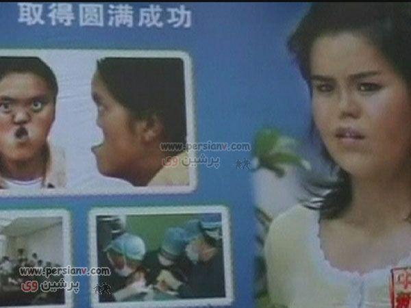 عکسهای شگفت انگیز:چهره دختری 18 ساله قبل وپس ازدرمان