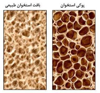روز جهانی پوکی استخوان در 20 اکتبر