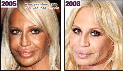 تغییر چهره ورساچه با جراحی زیبایی در طی سال ها