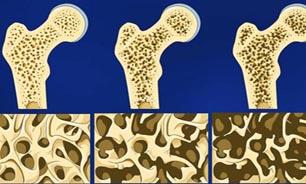هشت توصیه برای جلوگیری از پوکی استخوان