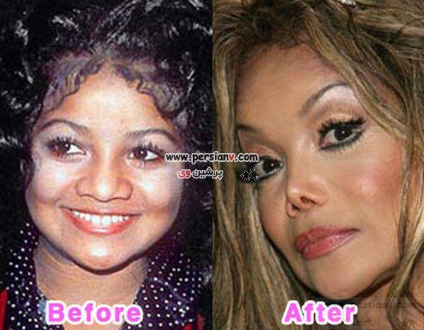 عکس : خانمها و آقایونی که با جراحی زیبایی ، زشت تر شده اند