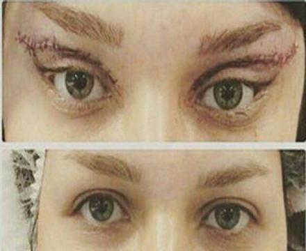 جراحی جدید زیبایی در تهران: منتظر زنان چشم گربه ای باشید!!