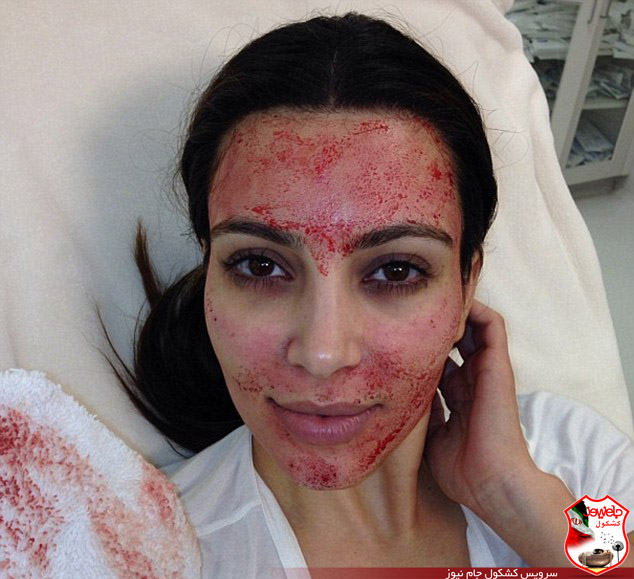 روش دردناک و جدید بازیگر زن برای زیباشدن ! تصاویر