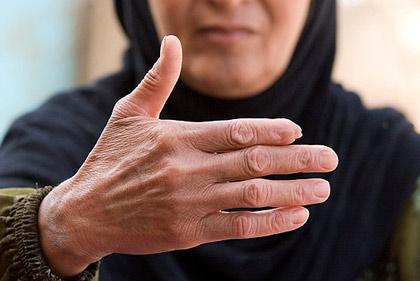 ماجرای تکاندهنده قطع انگشت ساکنان یک روستا  عکس