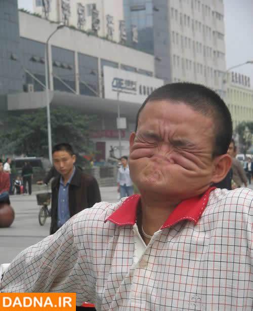 تصاویر: نحوه گاز گرفتن بینی