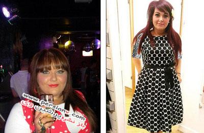 کاهش وزن دختری که می خواست شبیه خواهرانش باشد