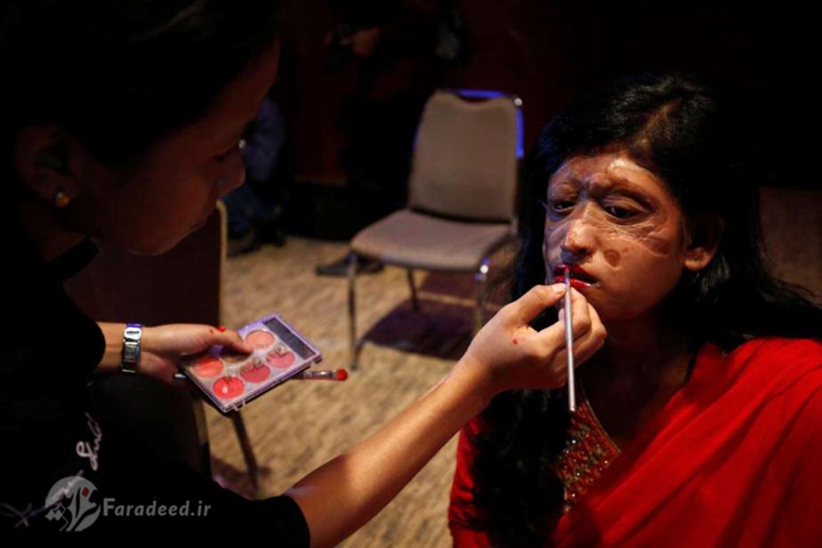 زنان قربانی اسیدپاشی مدل شدند