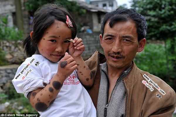 شرایط غم انگیز ظاهر دختربچه 6 ساله چینی عکس