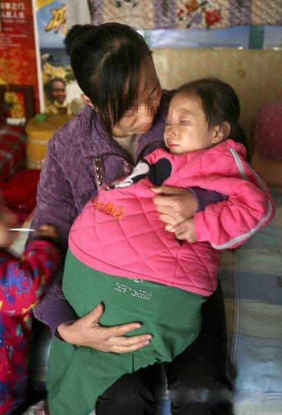 دختر بادکنکی که شکمش یک متر باد کرده/عکس